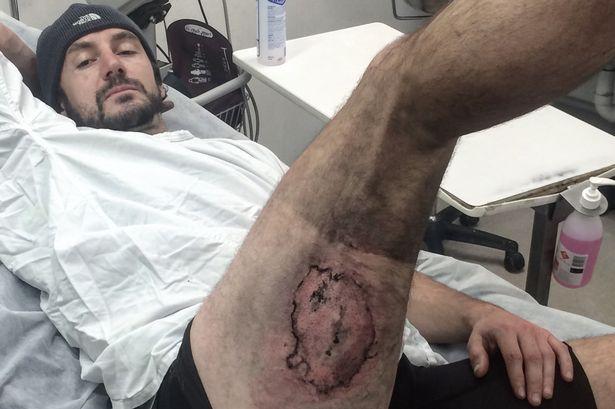 Cade dalla bici e l'iPhone gli esplode in tasca: ustionato ciclista2