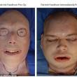 Trapianto di faccia su pompiere: rimase senza volto per un incendio FOTO