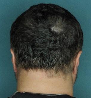 Alopecia, capelli ricrescono 50%: farmaco per artrite è miracoloso