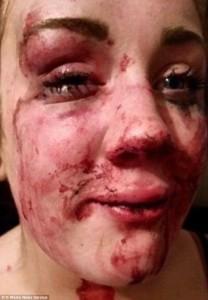 Mamma di 17 anni picchiata di nuovo da sconosciuti:3
