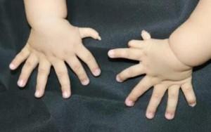 Bimbo nasce con 15 dita alle mani e 16 ai piedi FOTO