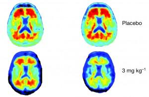 Alzheimer, farmaco miracoloso: fa scomparire placche cervello in un anno