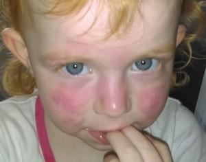 Guarda la versione ingrandita di Salviette umidificate causano ustione alla bambina, la denuncia della madre