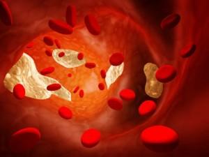Colesterolo: soglia sicurezza giù da 190 a 100. Esagerato?