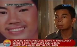 Filippine, voleva il naso occidentale222