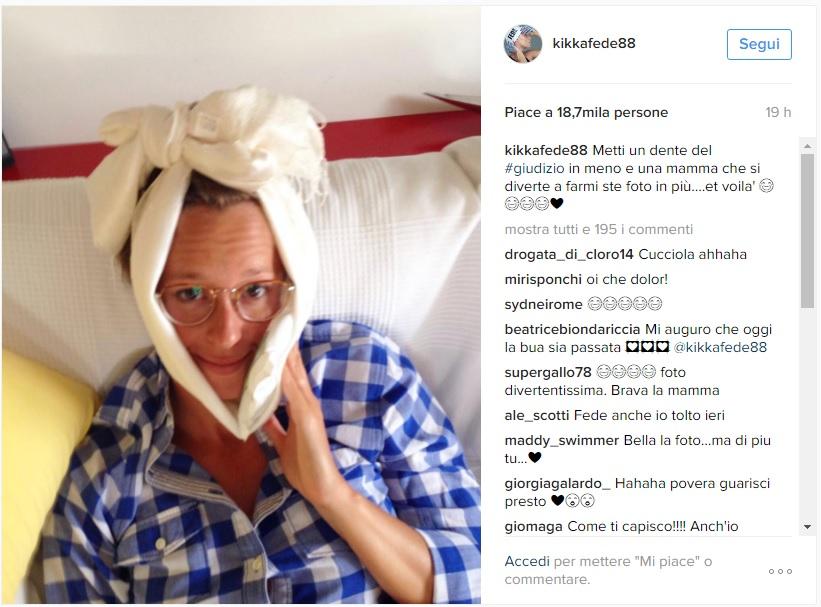 """Federica Pellegrini con """"un dente in meno"""" su Instagram FOTO02"""