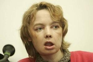 Isabelle Dinoire, prima persona sottoposta a trapianto del viso, è morta