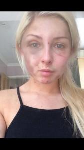 """Kelsie Skillen, picchiata dall'ex posta le foto su Fb: """"C'è chi lo difende"""""""
