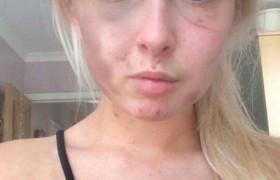 """Kelsie, picchiata dall'ex posta foto su Facebook <br /> Lei ha il visto tumefatto ma """"c'è chi lo difende"""""""
