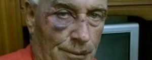 Guarda la versione ingrandita di Renato Persiani dopo essere stato picchiato