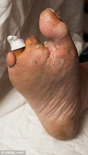 Malato di diabete, si taglia le dita dei piedi con una pinza 4