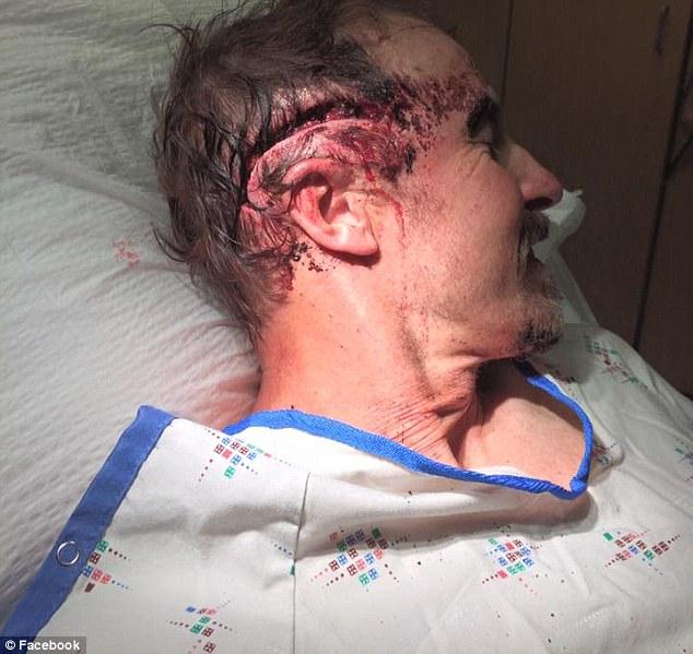 Subisce 2 attacchi da un orso: volto è una maschera di sangue5
