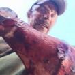 Subisce 2 attacchi da un orso: volto è una maschera di sangue1