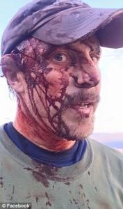 Subisce 2 attacchi da un orso: volto è una maschera di sangue