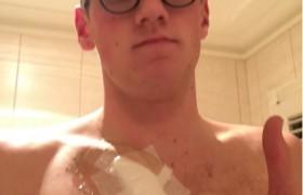 """Mack Horton, nuotatore olimpico salvato da fan <br /> """"Controlla bene quel neo"""", era un melanoma..."""