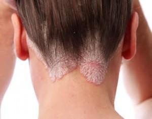 """Psoriasi, nuovo farmaco """"pulisce"""" la pelle: funziona per l' 80% dei pazienti"""