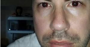 Valentino Talluto rischia 20 anni per contagi Hiv: chiesto processo