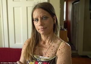 Libby Huffer e la neurofibromatosi: corpo coperto da 6000 tumori