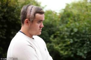 Cicatrici permanenti in testa dopo il coma5