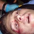 Studente cannibale uccide coppia e mangia la faccia di lei
