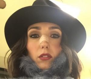 """Caterina Balivo, cerotto sul naso: """"Dolore atroce"""""""