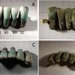 Dentiera di 400 anni fa trovata nella tomba dei Guinigi a Lucca