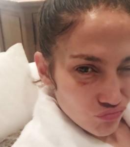 Jennifer Lopez si è ridotta così