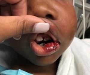 """Usa, bambino di 7 anni """"troppo vivace"""": maestro gli rompe la mascella"""