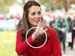 Kate Middleton, mistero cerotti alle mani. Giochi coi figli o...