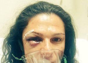Messico: senatrice Ana Gabriela Guevara picchiata perché...guida una Harley