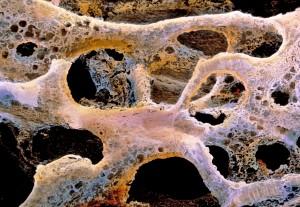 """Osteoporosi, italiano l'esame non invasivo che """"fotografa"""" le ossa"""