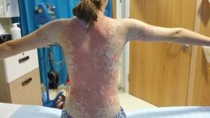 Viene punta da zanzara e sviluppa strana malattia.