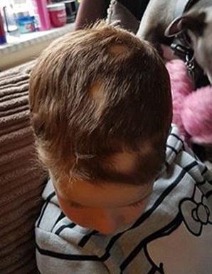 Bimba ha la lopecia a scuola con parrucca, gli insegnanti4