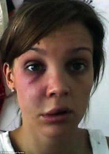 Ex Miss Inghilterra danielle Lloyd picchiata da ex partner