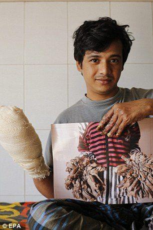 """Uomo albero"""" operato: aveva 4 chili di verruche sulle mani5"""