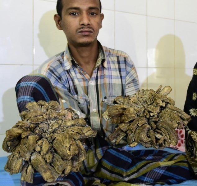 """Uomo albero"""" operato: aveva 4 chili di verruche sulle mani8"""