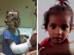 India, la donna lo rifiuta: lui getta acido sul figlio di 2 anni