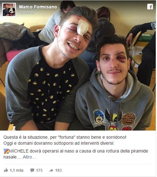 Milano, due ragazzi gay aggrediti e presi a bottigliate fuori dalla discoteca