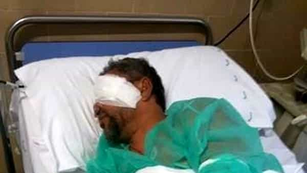 Roma, ambulante bengalese picchiato in strada a Roma