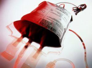 Segreto per non invecchiare? Trasfusioni di sangue giovane. A 8mila dollari