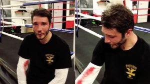 Stefano De Martino, sangue e naso livido durante un incontro di boxe