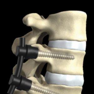 Scoliosi, si opera per raddrizzare la schiena: 12enne resta paralizzata