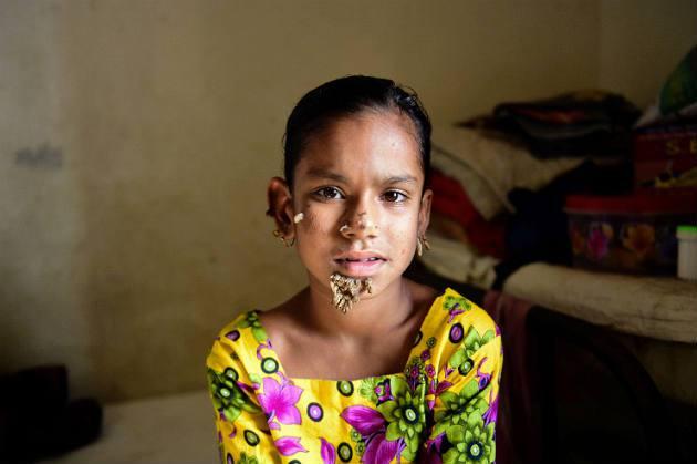 Bambina affetta dalla sindrome dell'uomo-albero: Sahana Khatun CHOC