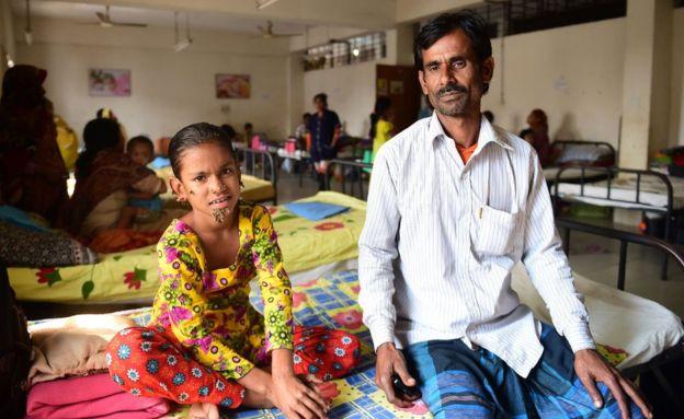 In Bangladesh, la prima ragazzina con la 'sindrome dell'uomo albero'