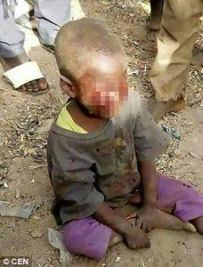 Zimbabwe, cava gli occhi del figliastro di 4 anni: aveva fatto la pipì a letto