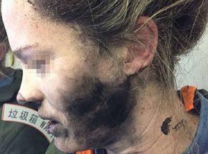 Australia, cuffiette prendono fuoco in volo: ragazza con volto bruciato
