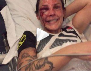 Linda Lansberg prende 163 colpi sul ring: VIDEO in cu va in ambulanza col volto sfigurato fa discutere