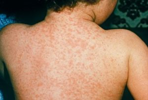 Morbillo: mille casi in tre mesi. Sulla coscienza dei No vaccino