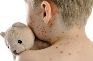 Morbillo torna: 238 casi in un mese. Lo portano i No vaccino
