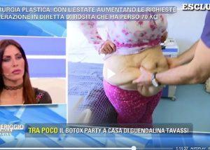 """Barbara D'Urso e il chirurgo shock con la paziente: """"Ora le taglio la pancia..."""""""